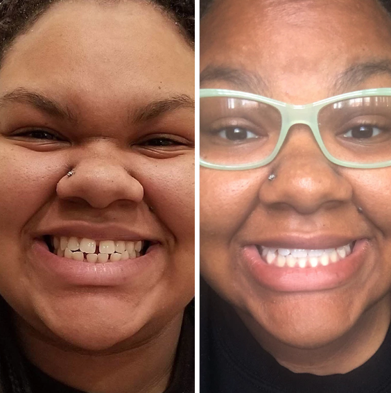 candid co smile before and after progress