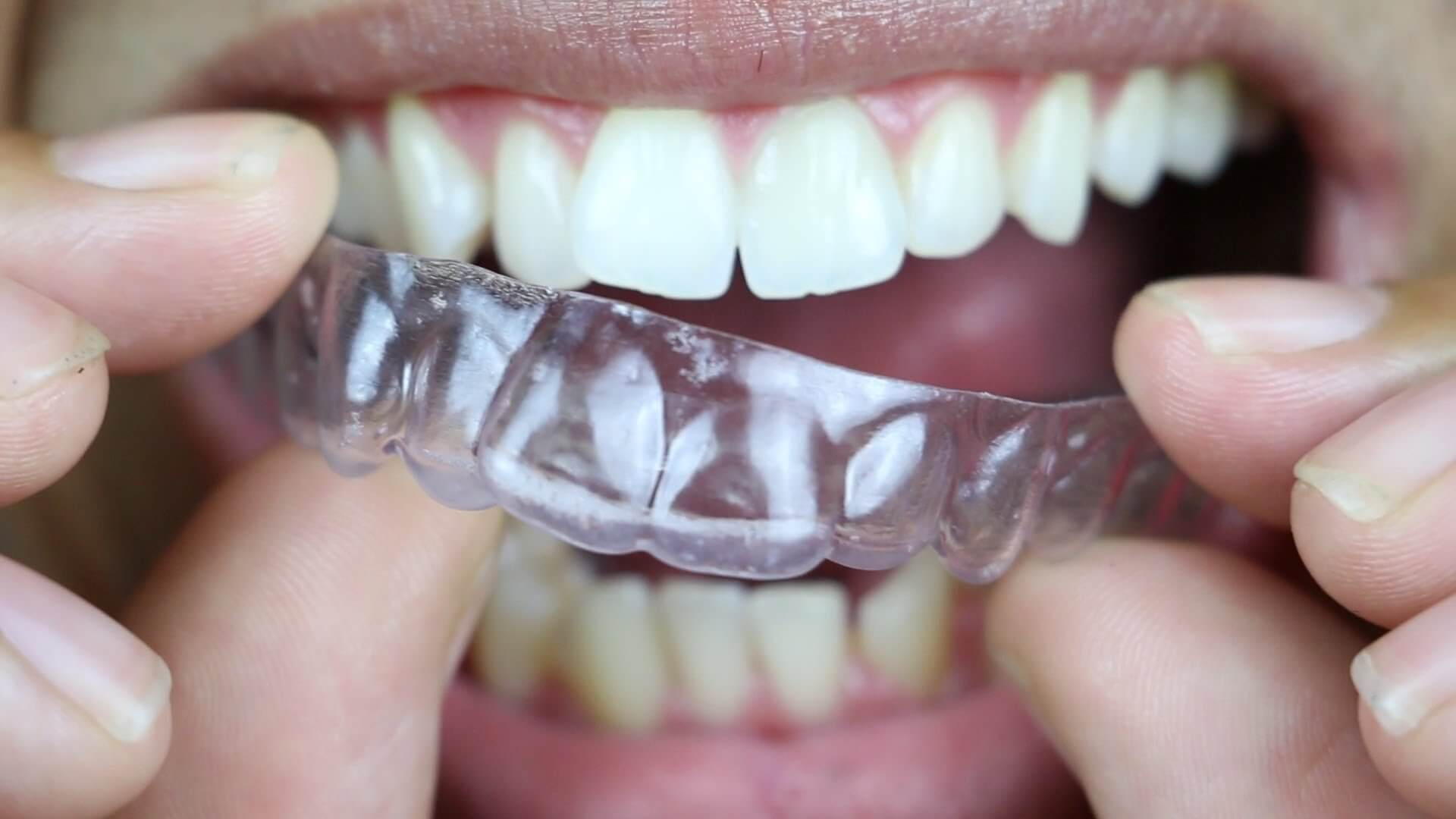 On Youtube Clear Aligners