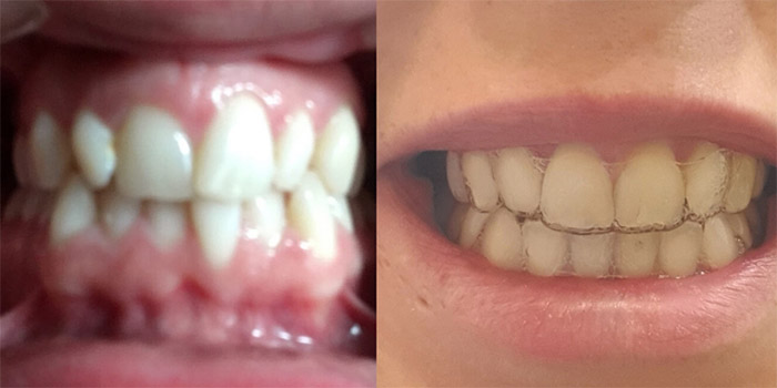 smilelove before and after